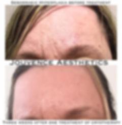 seb hyperplasia forehead.JPG