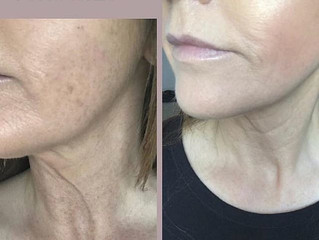 Skin rejuvenation with Profhilo