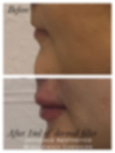 2020 lips 1.JPG