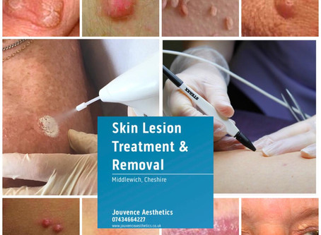 Worried about skin lesions?