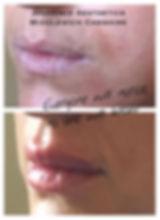 2020 lips 2.JPG