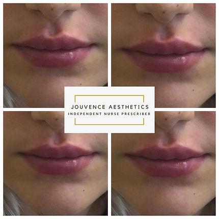 2020 lips 5.JPG