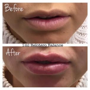 gallery lips3.JPG
