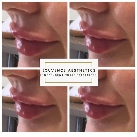 lips 4 sept 20.JPG