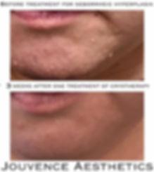 sebaceous hyperplasia chin.JPG