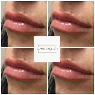2020 lips 8.JPG