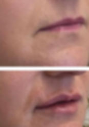 lips kz2.jpg
