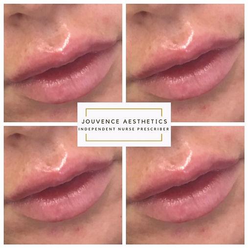lips 9 20.JPG