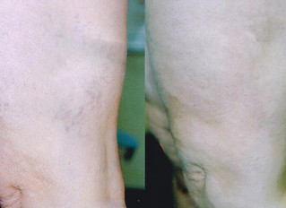 What is microsclerotherapy?