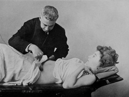 Vibradores victorianos: la industrialización del orgasmo