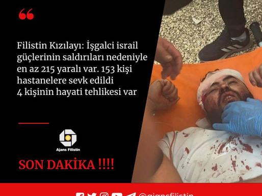 İşgalci israil güçlerinin saldırıları nedeniyle en az 215 yaralı var. 153 kişi hastanelere sevk edil