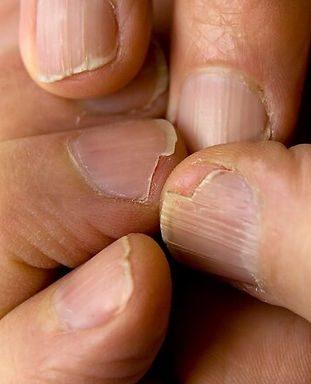 1800ss_getty_rf_brittle_nails.jpg