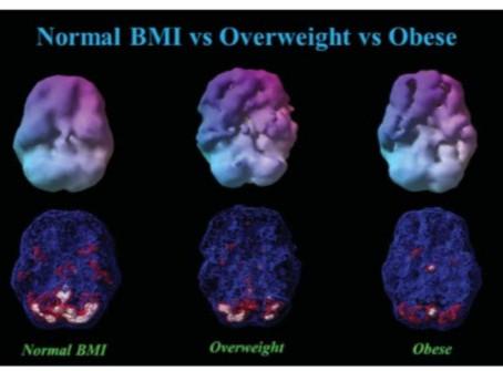 Artan Vücut Kitle İndeksi Beyni Nasıl Etkiliyor?