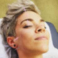 acupunctur face lift