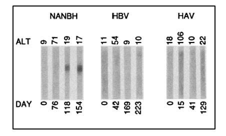 Figure 3.3 Choo et al. Science 1989. Immunoblots with sequential serum samples from representative chimpanzees infected with NANBH, HBV, or HAV, probed against the protein encoded by the 5-1-1 ORF.
