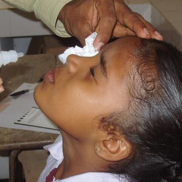 Eye drops patient.JPG