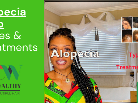 Alopecia Hair Loss: Types of Alopecia and ways to Grow your Natural Hair Back