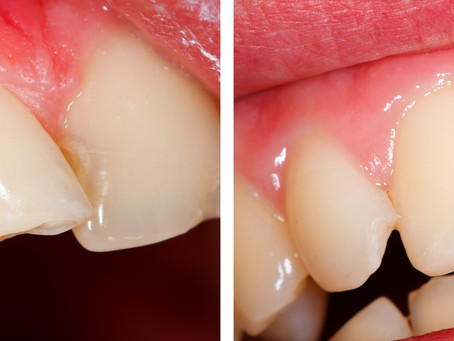 How Can Cosmetic Bonding Improve My Smile? Portland, OR Family & Cosmetic Dentist Answers