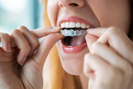 Dental Care of Glen Ellyn Family, Cosmetic, Implants_Dentist Glen Ellyn IL
