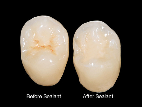Protect Cavity-Prone Teeth With Dental Sealants! Learn from Your Family Dentist in Beaverton, Oregon