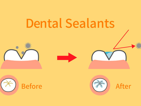 Protect Cavity-Prone Teeth With Dental Sealants! Learn from Your Family Dentist in Pflugerville, TX