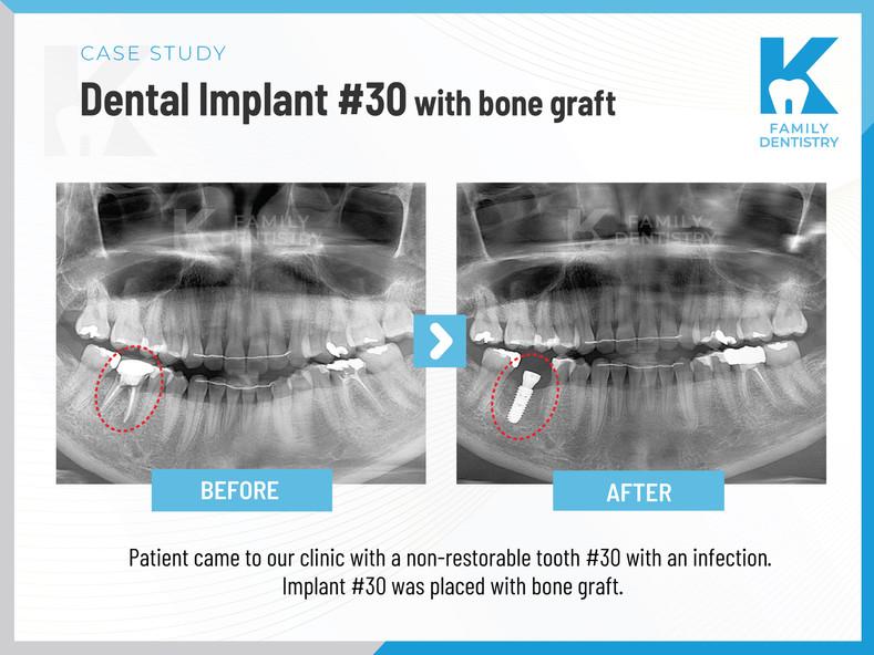 Dental Implant #30 with bone graft