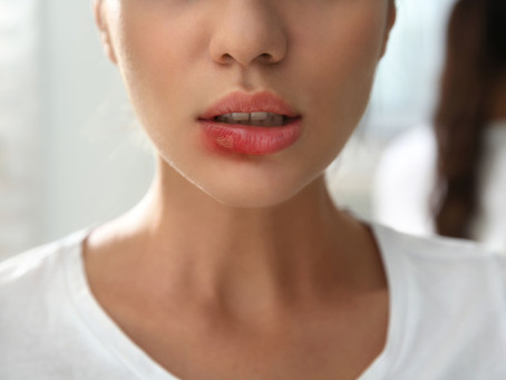The Common Signs & Symptoms of Oral Cancer, Explained by Beaverton, OR Family & General Dentist