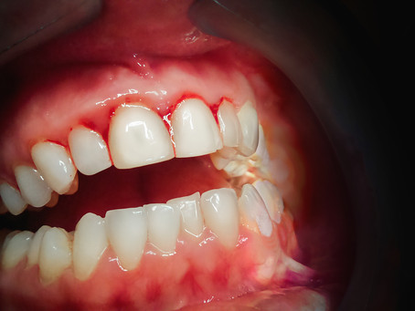 Can Gum Disease Be Healed? Yes! Your General Dentist in Northwest Dallas, Texas Explains How