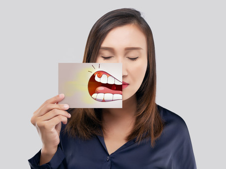 Why Should You Get Screened for Oral Cancer? Oral Cancer Awareness Month with Bellevue, WA Dentist