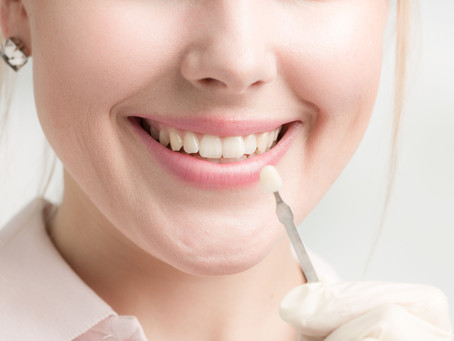 What is Tooth Reshaping, AKA Dental Contouring? Your Seattle, WA Cosmetic & General Dentist Explains