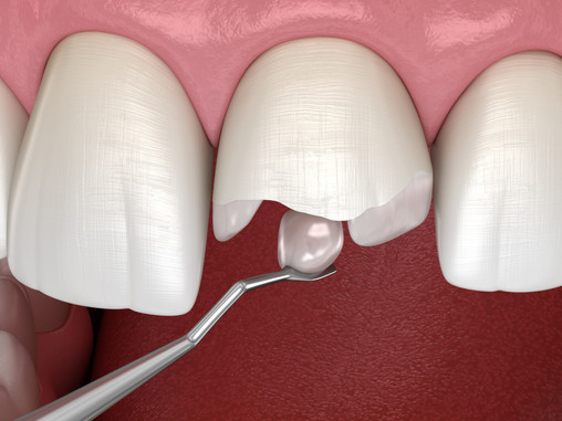 How Can Cosmetic Bonding Improve My Smile? Vancouver, WA Family & Cosmetic Dentist Answers
