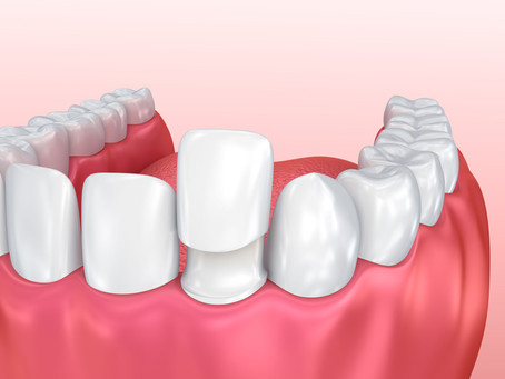 How are Esthetic Crowns and Veneers Different? Your Salem, OR Cosmetic Dentist Explains
