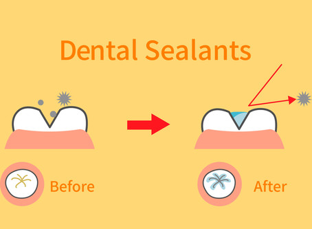 Protect Cavity-Prone Teeth With Dental Sealants! Learn More from Your Portland Family Dentist