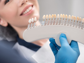 How to Keep Esthetic Crowns, Veneers & Bridges Looking Their Best, With Portland,OR Cosmetic Dentist