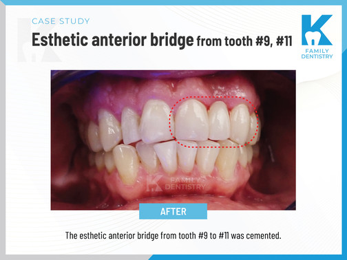 Esthetic anterior bridge from tooth #9, #11