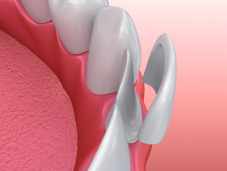 Keep Your Esthetic Restorations Gorgeous & Strong, With Salem, OR Cosmetic & Restorative Dentist