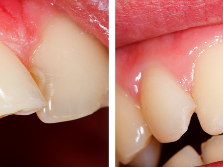 How Can Cosmetic Bonding Improve My Smile? Salem OR Family & Cosmetic Dentist Answers
