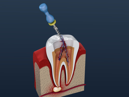 Step By Step: How Root Canal Therapy is Done; Skilled Vancouver, WA Restorative Dentist Explains