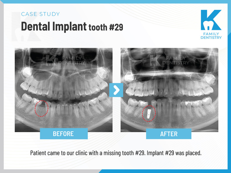 Dental Implant tooth #29