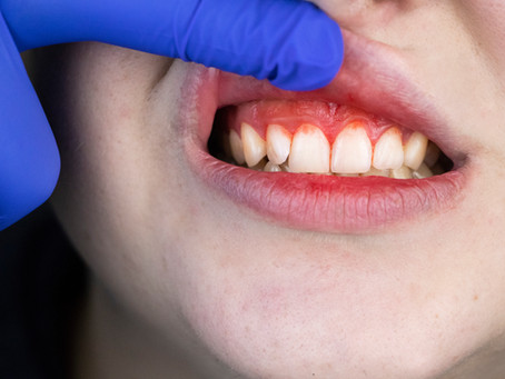 Healing Gum Disease; Your General Dentist in Irving, Texas Describes Treatment Options