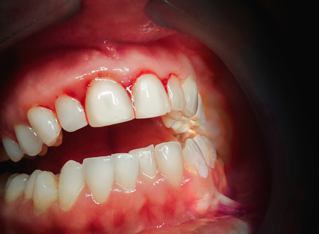 Can Gum Disease Be Healed? Yes! Your lrving General Dentist Explains How