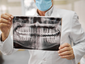 Root Canal Therapy, Step-By-Step; Portland, OR General & Restorative Dentist Explains the Procedure
