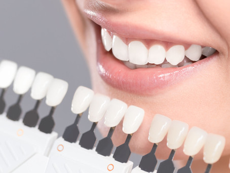 How are Esthetic Crowns and Veneers Different? Your Beaverton, OR Cosmetic Dentist Explains