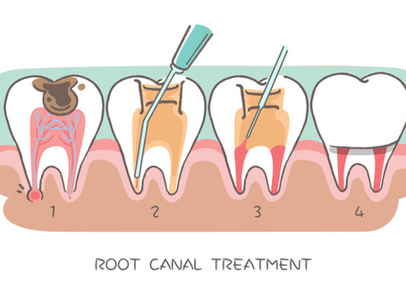 Step By Step: How Root Canal Therapy is Done; Skilled Beaverton, OR Restorative Dentist Explains