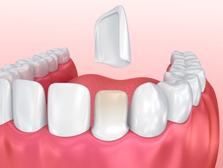Which One is Right for You: Porcelain Veneers or Crowns? Learn With Beaverton, OR Cosmetic Dentist