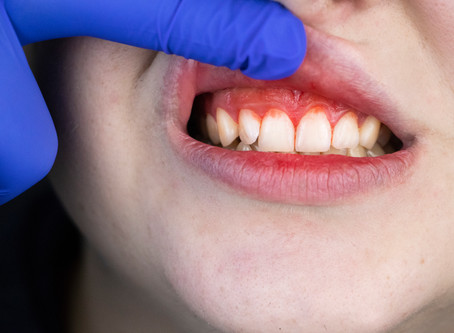 Can Gum Disease Be Healed? Yes! Your Portland General Dentist Explains How
