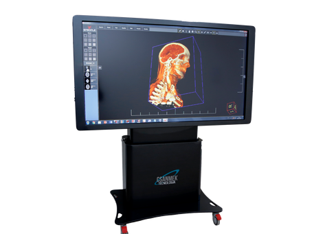 Tecnologia converte ressonâncias e tomografias em clones virtuais