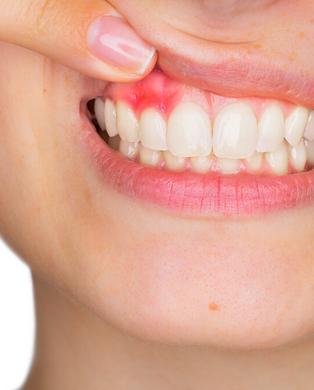 periodontia.png