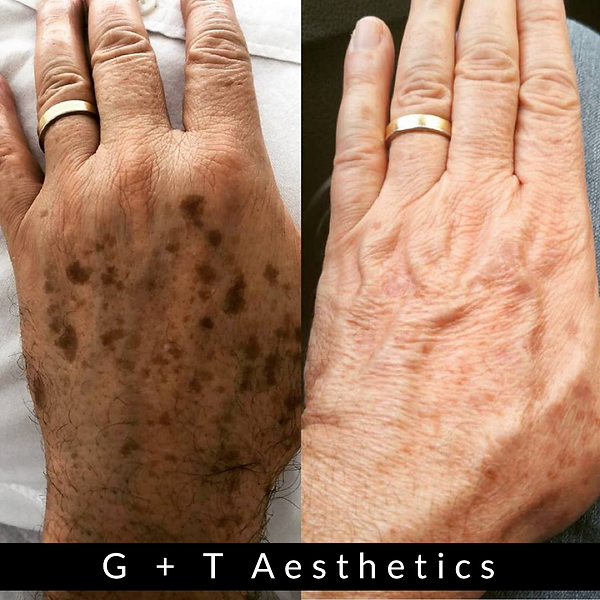 The Jett Medical Plasma Pen available at G&T Aesthetics | Stamford | Lincolnshire