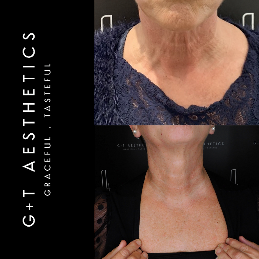 Before/After neck & décolleté treatment with Jalupro G&T Aesthetics Stamford Lincolnshire